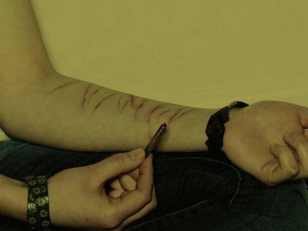 Selvskade hos unge på bosteder og på psykiatriske afdelinger