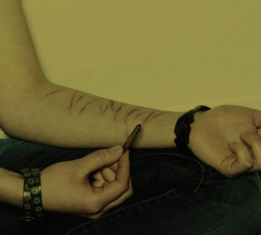 selvskade